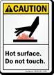 Caution (ANSI) Sign